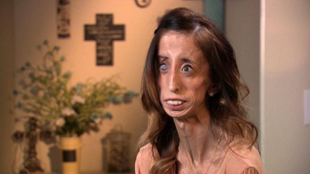 Lizzie2 Filme Mostra Como Mulher 'Mais Feia do Mundo' Superou Bullying