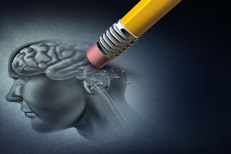 Alzheimer-Sinais-e-Prevencao Alzheimer - Sinais e Prevenção